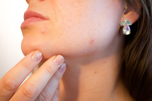 acne-1606765__340