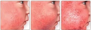 Atopijski dermatitis – dečiji ekcem