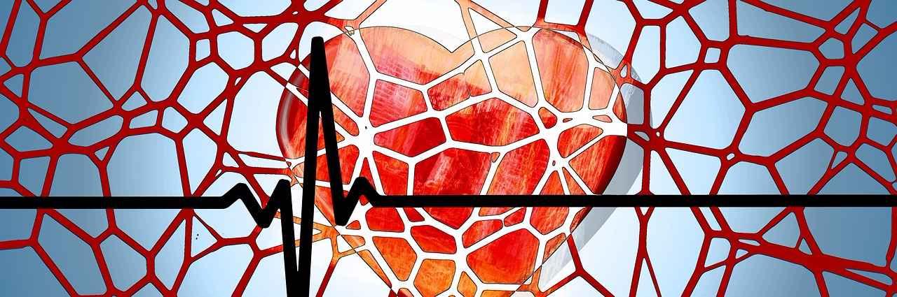 holesterol-krvni-sudovi
