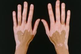 Crni kumin u borbi protiv vitiliga (belih fleka po koži)