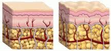 koža - kako nastaje celulit