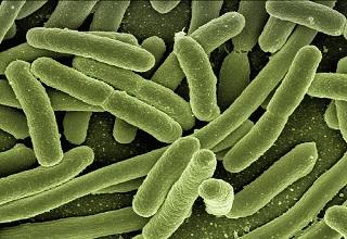koli-bacteria-123081_960_720